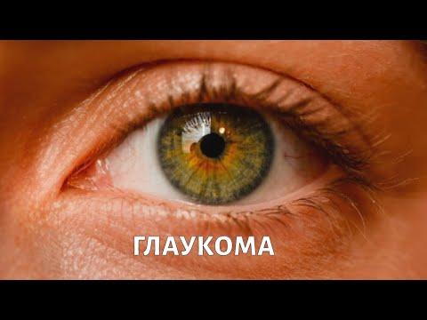 Глаукома. Симптомы. Офтальмолог Христо Тахчиди | Телеканал Доктор