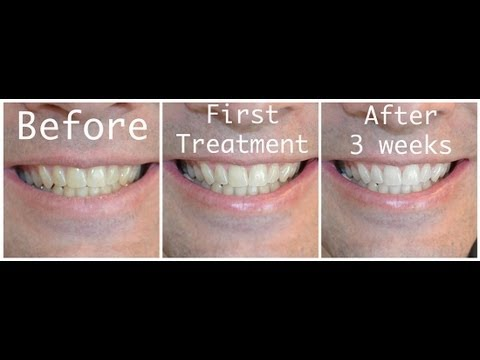 How To Whiten Your Teeth With Hydrogen Peroxide Youtube