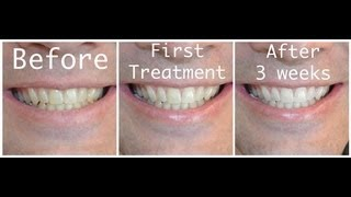 How-to Whiten your teeth with Hydrogen Peroxide