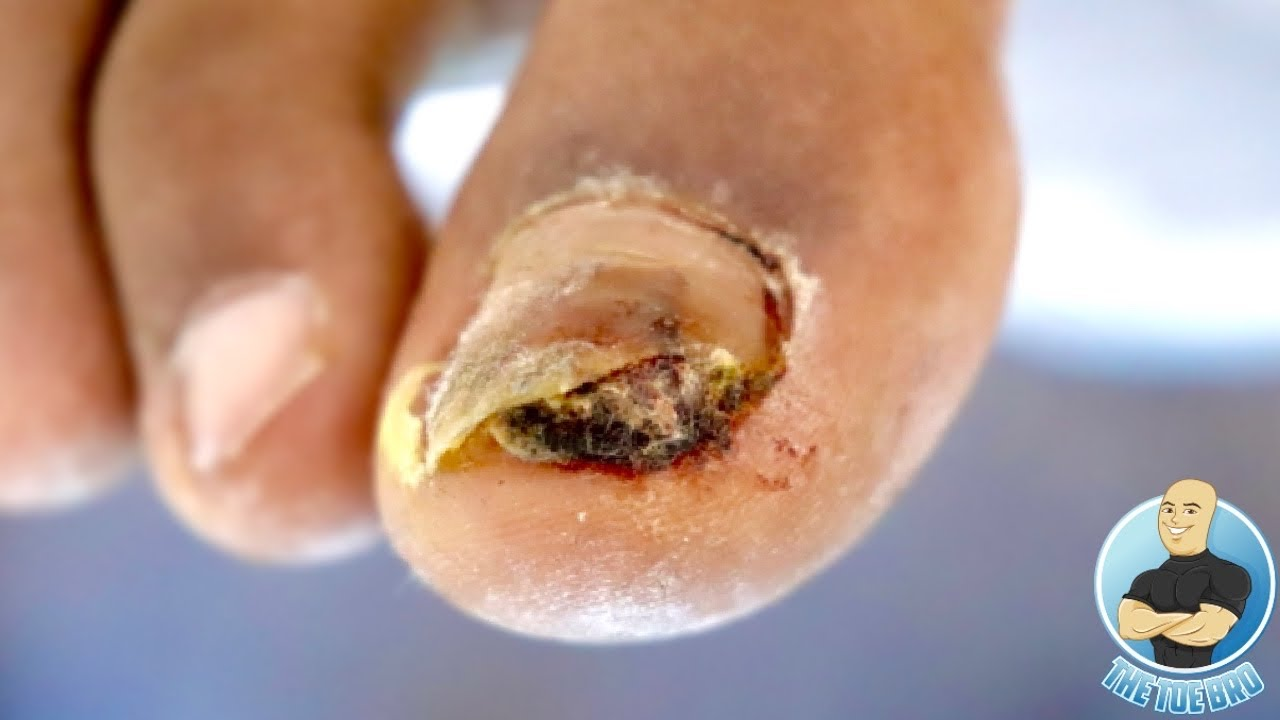 THERE IS SOMETHING GROWING UNDER HIS TOENAIL ***ABNORMAL GROWTH???***