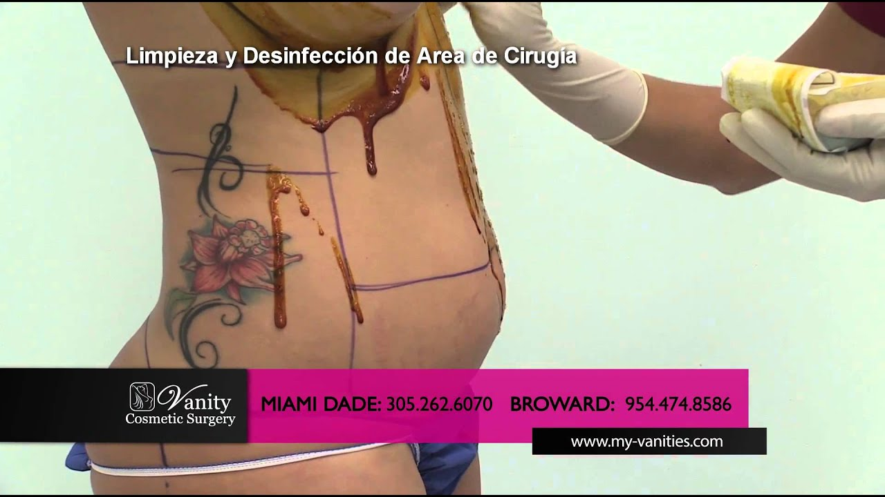 Liposuction Plastic Surgery Procedure (Procedimiento De Liposuccion) Vanity  Miami Surgery Video   YouTube