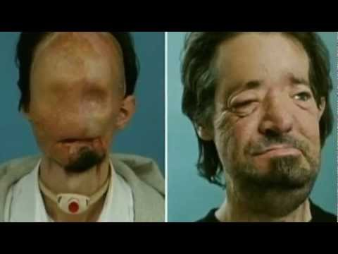 Full face transplant man gives emotional press conference in Boston