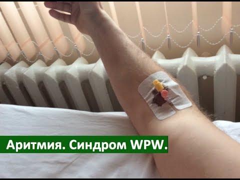 #9. Лечение аритмии. Синдром WPW.