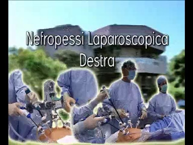 Laparoscopic Surgery - Nefropressi laparoscopica destra