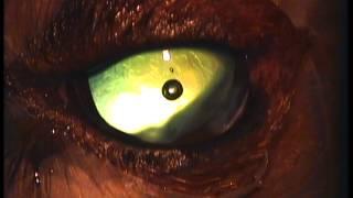 Австралийский шелковистый терьер катаракта