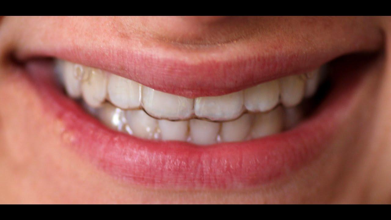 Zahnspange vor und nach dem Abnehmen