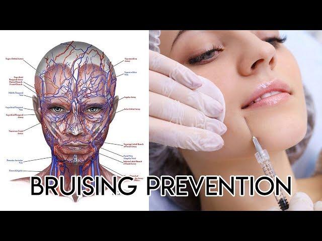 Bruising Prevention