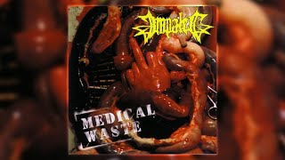 Watch Impaled Medical Waste video