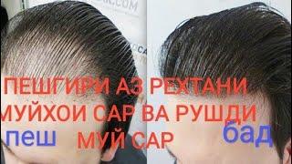 ПЕШГИРИИ РЕЗИШИ МУЙ САР БО РАВГАНИ ЗАЙТУН КИСМИ 2. Хороший рецепт для волосса.