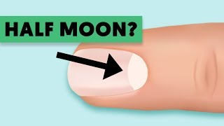 Warning! Do You Have That Half Moon Shape On Your Nails?