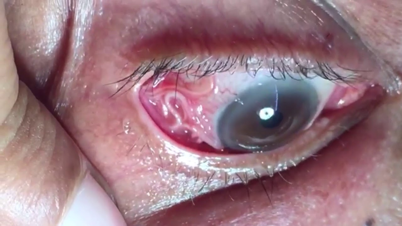 Wurm Im Auge