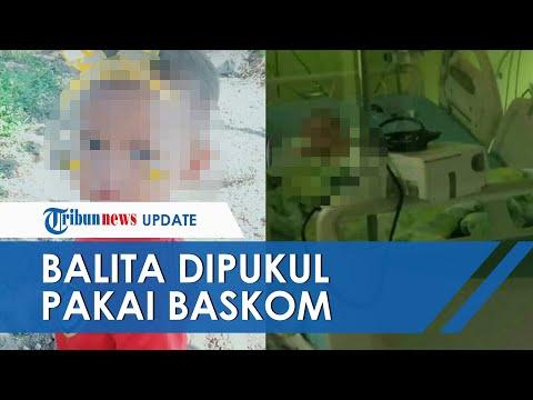 Ayah Tiri Siksa Bocah 3 Tahun di Palembang hingga Tewas, Luka Korban Terparah Dipukul Pakai Baskom
