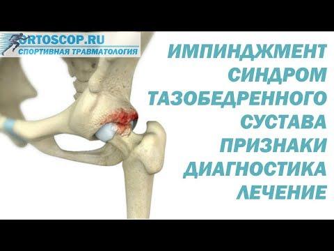 Причины боли в тазобедренном суставе