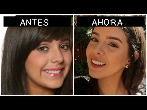 DISEÑO DE SONRISA | DIENTES GRANDES (STORY TIME)