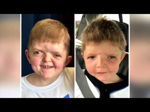 Living With Apert Syndrome - Aiden Skees' Story