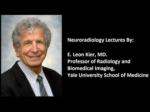 Imaging Features Of Meningiomas - Part 1