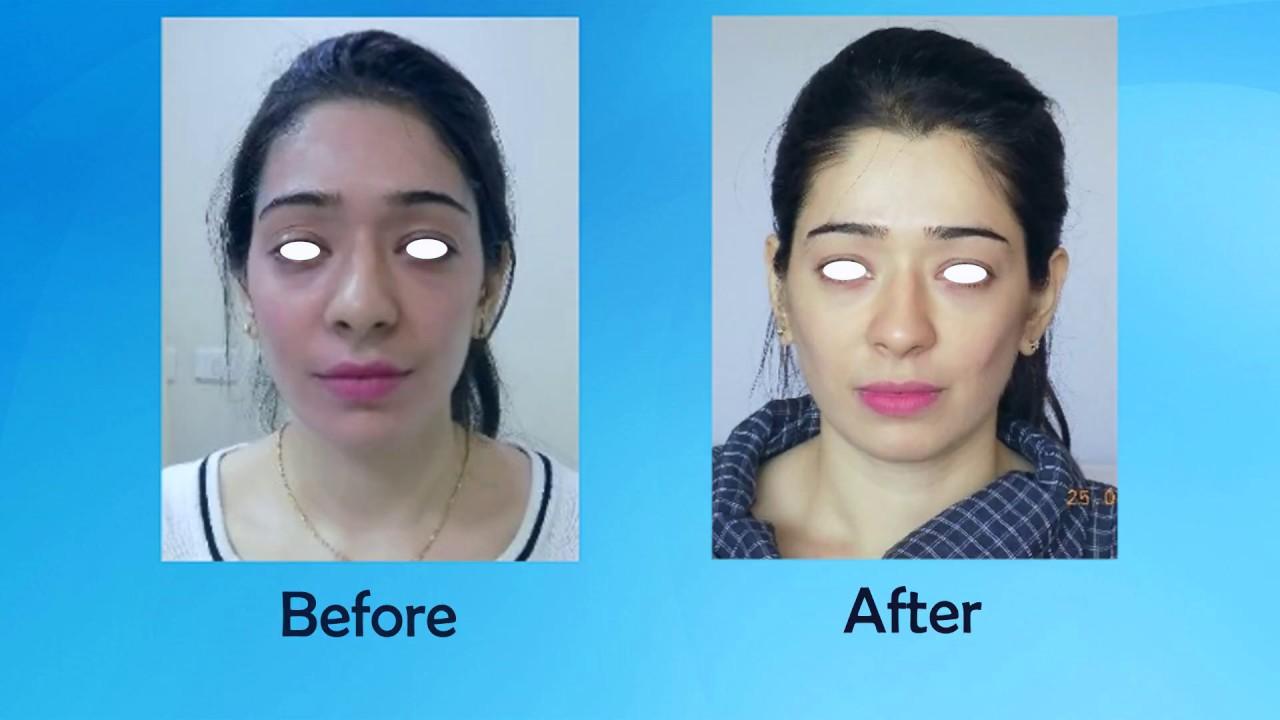 Best Beauty Treatments India  Juvederm fillers & Botox