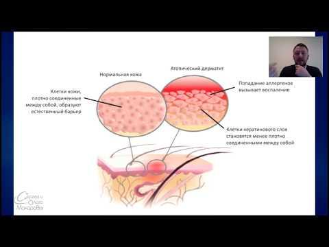 Дерматит и его лечение, себорейный дерматит, атопический