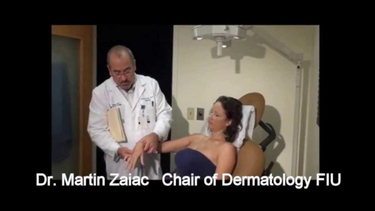 Vitiligo Laser Treatment Xtrac Miami By Martin Zaiac Md