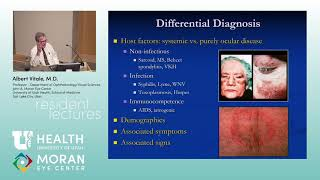 This lecture will cover the manifestations of various forms of virally induced intraocular inflammat.