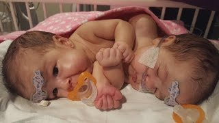 Twins Conjoined at Heart Are Successfully Separated In Rare Surgery