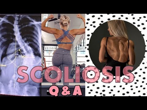 SCOLIOSIS Q&A    Confidence, Weight Lifting, Pregnancy...