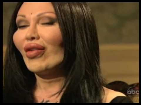 Celebrity Plastic Surgery - Gone Too Far - Pete Burns Interview