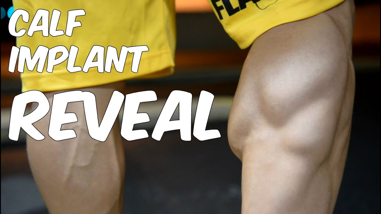 CALF IMPLANTS GONE WRONG! *REVEAL* - YouTube