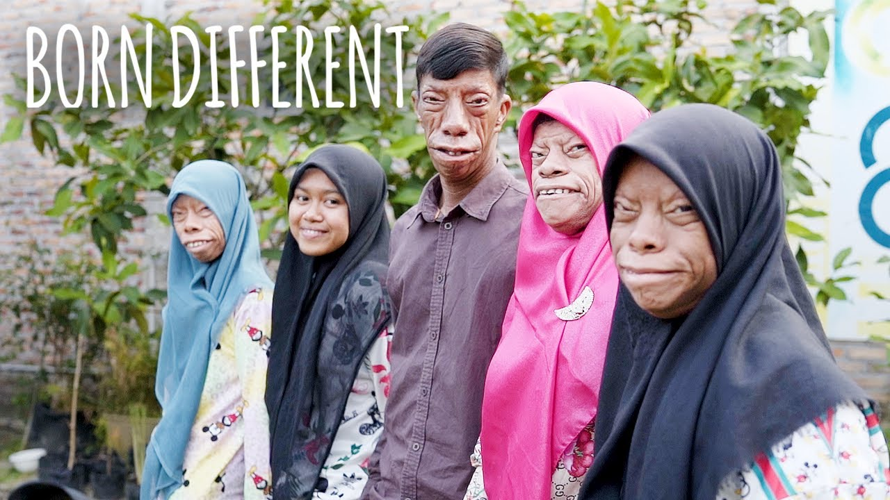 The Family Whose Faces Change Shape | BORN DIFFERENT