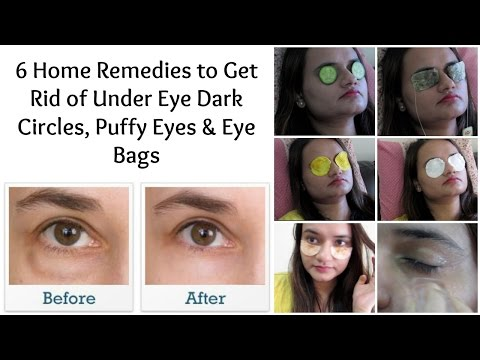 How to get rid of under eye bags with makeup