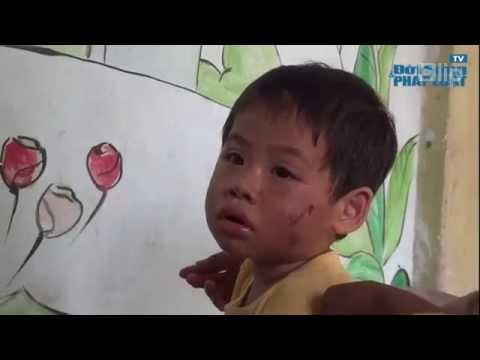 [Bạo hành trẻ em] Bé 2 tuổi bị hàng xóm đánh gãy răng, nhét băng vệ sinh vào mồm