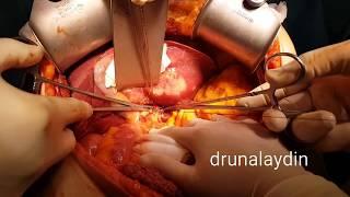 Karaciğer Kanseri Ameliyatı Video (dev safra yolu kanseri) drunalaydin