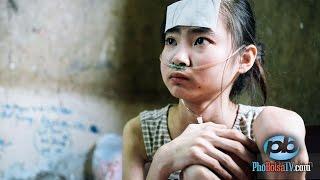 Thiếu nữ bệnh lao phổi, nghèo khó không tiền chữa trị, cần giúp đỡ gấp