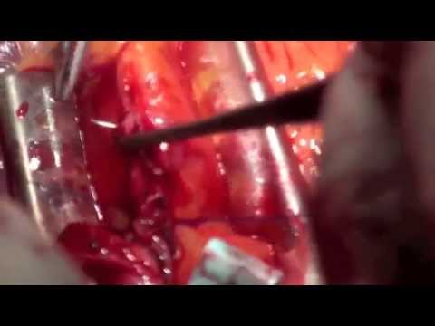 Full Arterial Off Pump Coronary Artery Bypass Grafting