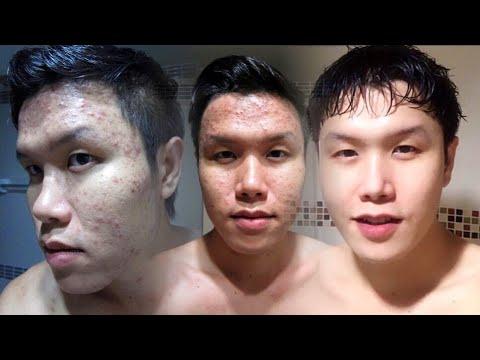 รีวิว วิธีรักษาสิวอักเสบ สิวเห่อ จากการแพ้เครื่องสำอาง / How to treat acne due to cosmetic allergies
