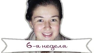 видео Беременность на 6  неделе – что происходит, ощущения, развитие плода, фото и УЗИ на 6  неделе беременности