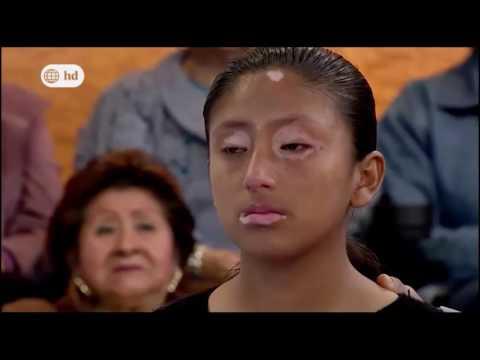 DR.TV -  Tubo de la Verdad: Vitiligo