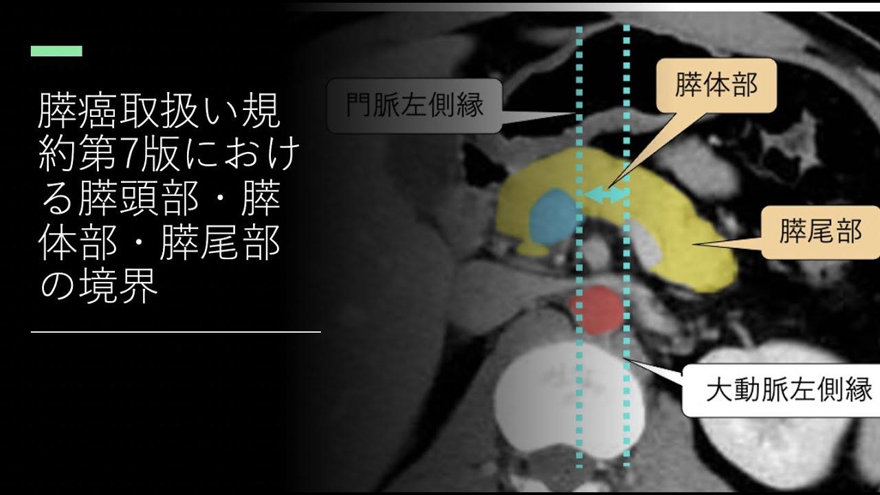 膵癌取扱い規約第7版における膵頭部・膵体部・膵尾部の境界