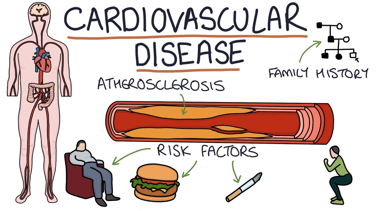 Understanding Cardiovascular Disease: Visual Explanation for Students -  YouTube
