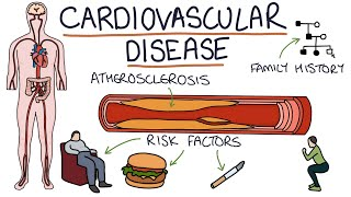 List Of Diseases Affecting The Circulatory System