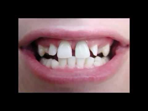 Dentist Chicago | Lincoln Park Chicago Dentist