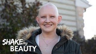 I Love Being Bald | SHAKE MY BEAUTY