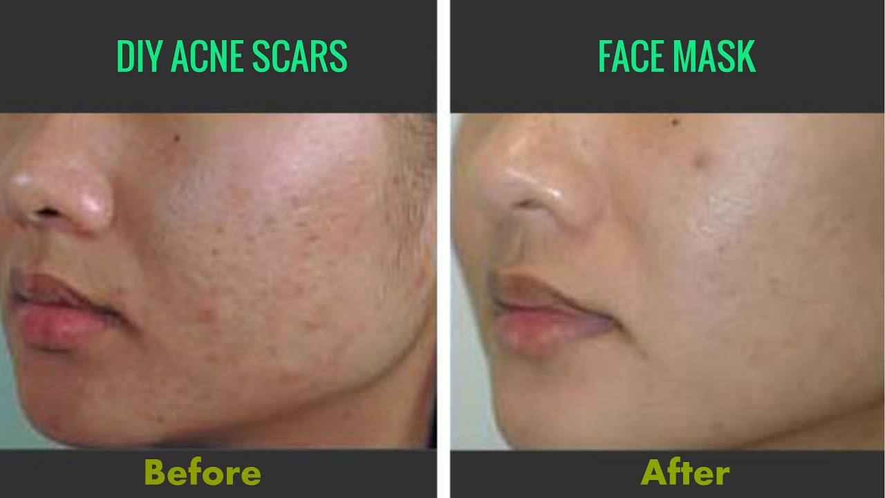Natural Ways To Remove Dark Acne Scars