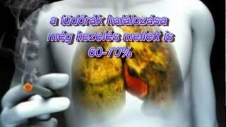 a dohányzás fejfájást okozhat