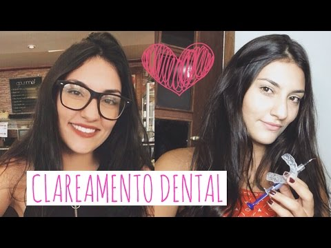 Tudo Sobre Clareamento Dental Caseiro Moldeira Minha Experiencia