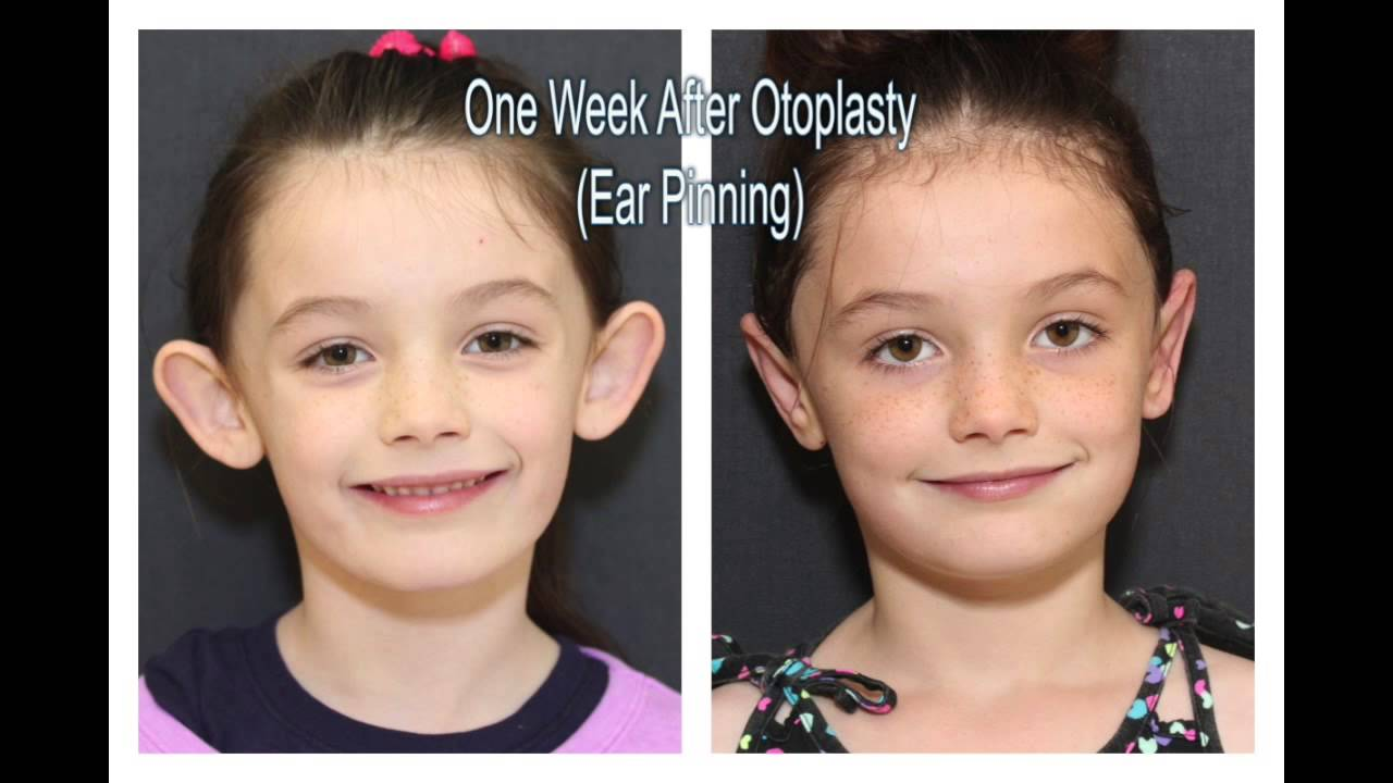 watch 9de0a aa4e1 Otoplasty - Ear Pinning or Ear Reshaping