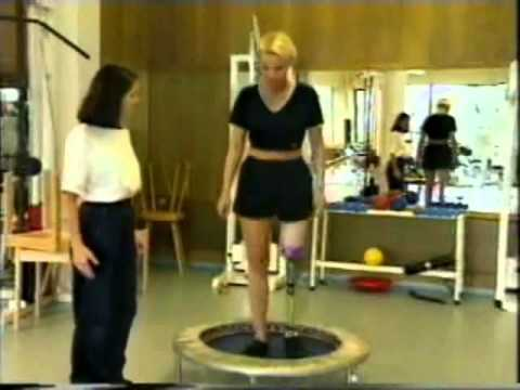 Birgit lak left above the knee female amputee in rehab