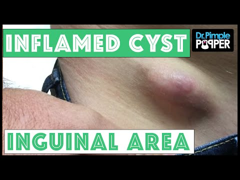 Inflamed Egg-Shaped Cyst Removed, Right inguinal area