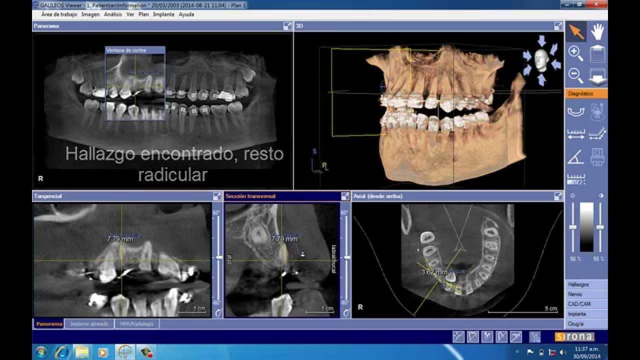 """Résultat de recherche d'images pour """"orthophossirona"""""""