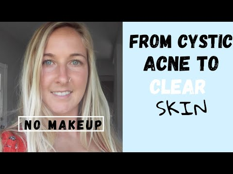 pcos:-how-i-healed-my-cystic-acne-for-good